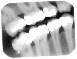 Dental X-ray film.